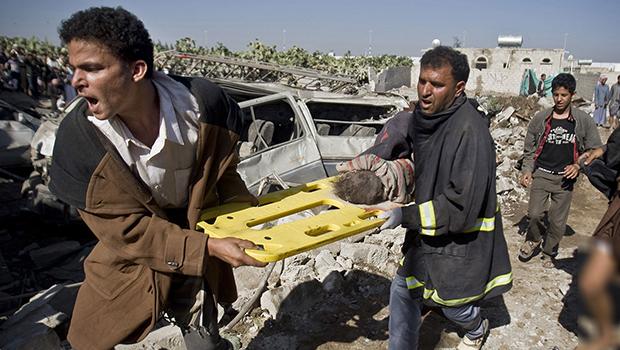 صورة العفو الدولية : ينبغي التحقيق على وجه السرعة بمقتل مئات المدنيين باليمن