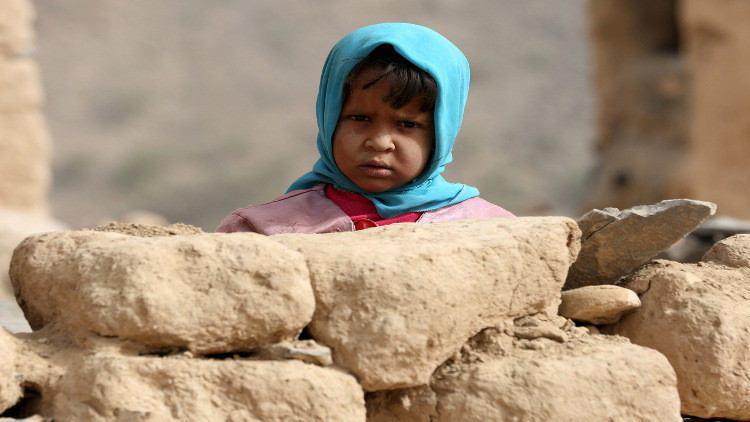 صورة أكثر من 700 طفل ضحايا قصف التحالف السعودي في اليمن