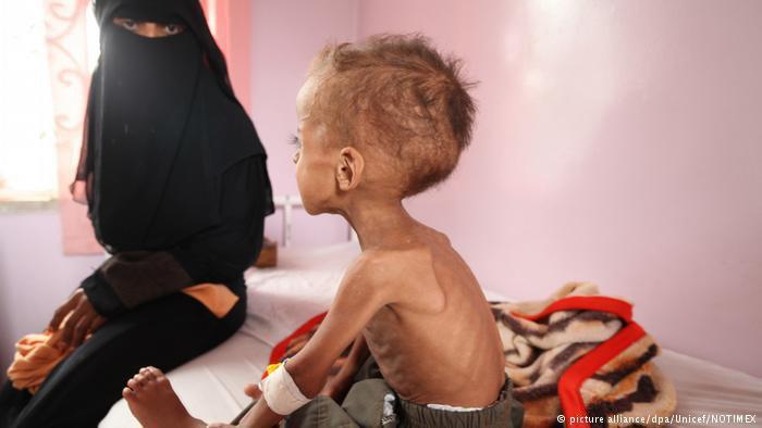 Photo of المجاعة تهدد نصف مليون طفل ومليونين خارج التعليم في اليمن