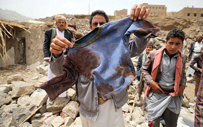 صورة اليونيسيف تكشف استشهاد 200 طفل يمنياً جراء العدوان السعودي منذ مطلع العام الجاري