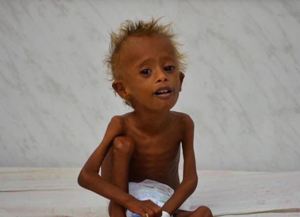 Photo of ديلي تيليغراف:أكثر من 50 ألف طفل يمني معرّضون للموت بحلول نهاية العام