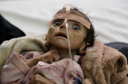 صورة الأمم المتحدة: الجوع يهدد بموت 13 مليون شخص في اليمن