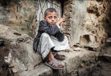 صورة الأمم المتحدة: خطر الموت يحدق بـ 360 ألف طفل يمني