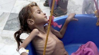 صورة بريطانيا: الموت يهدد ملايين اليمنيين في ظل قطع المساعدات