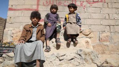 صورة اليونيسيف: الجوع والمرض يقتلان طفلًا يمنيًا كل 10 دقائق