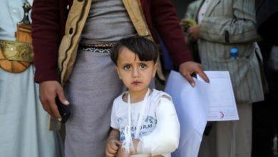 صورة يونيسف: عشرة آلاف طفل قتلوا أو شوهوا في اليمن منذ التدخل السعودي
