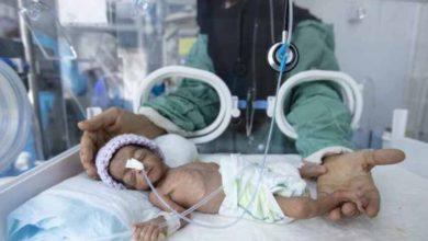صورة ارتفاع قياسي في وفيات الأمهات والمواليد في اليمن