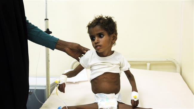 Photo of Saudi siege could kill more hunger-stricken kids in Yemen: UNICEF