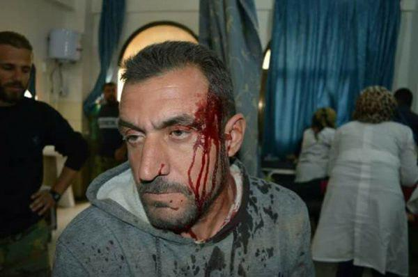 Photo of Two civilians killed, others injured in terrorist attacks in Damascus Aleppo