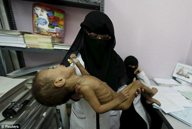 Photo of Yemeni hospitals will run out of fuel in three weeks: UN