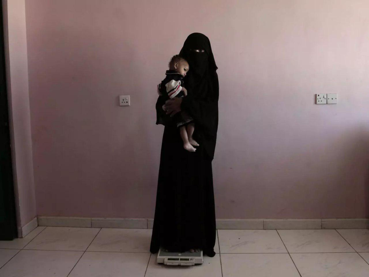 Photo of Parents forced to watch their children starve to death amid Saudi war