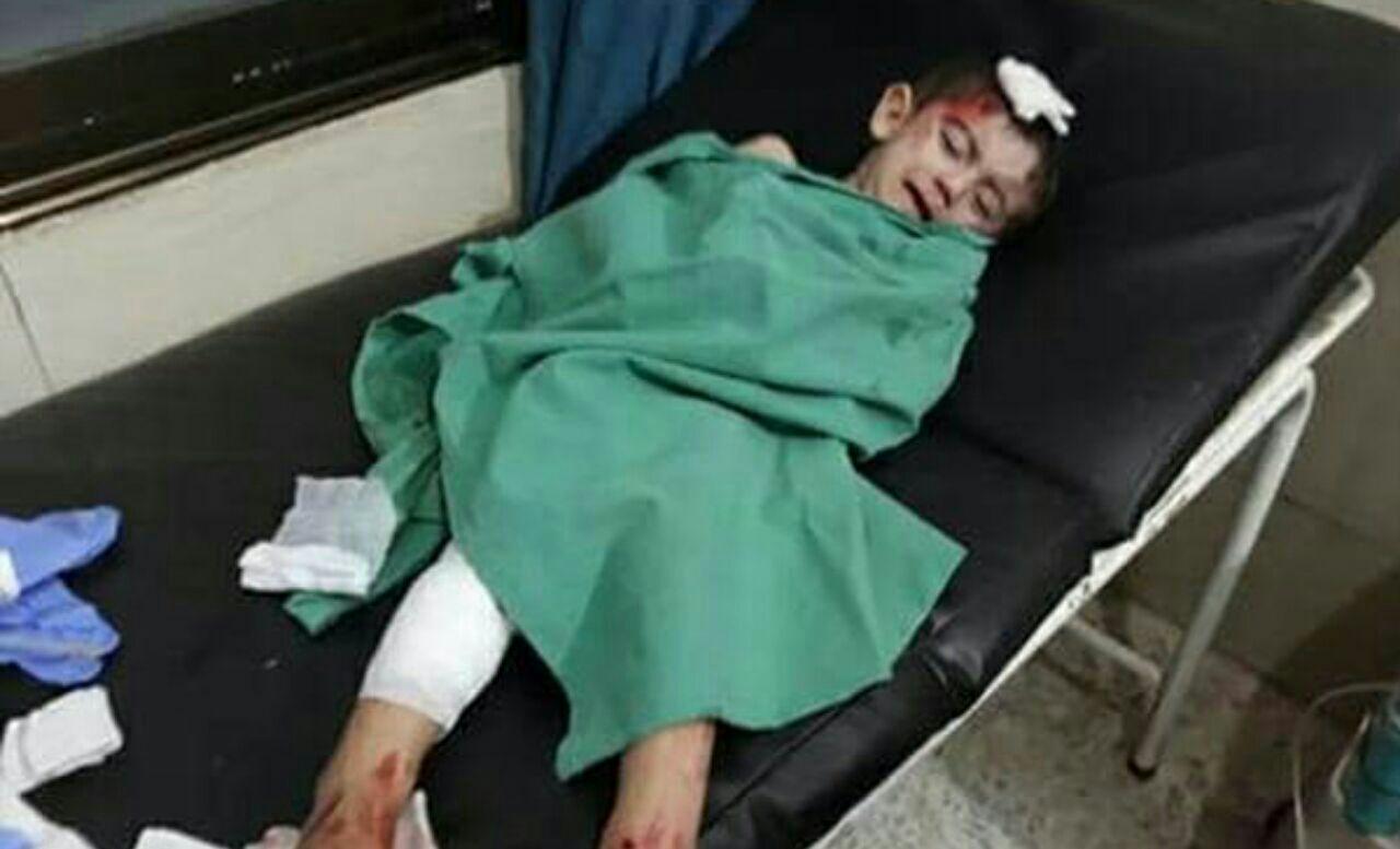 Photo of Woman martyred, 5 injured in terrorist attacks in Nubbul and al-Zahraa