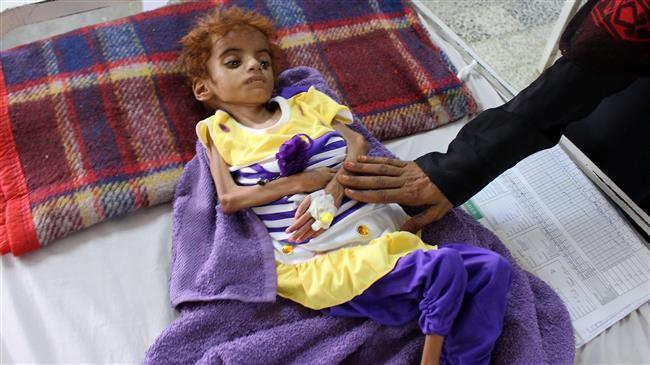 Photo of UN warns 12mn Yemenis may face worst famine in 100 years