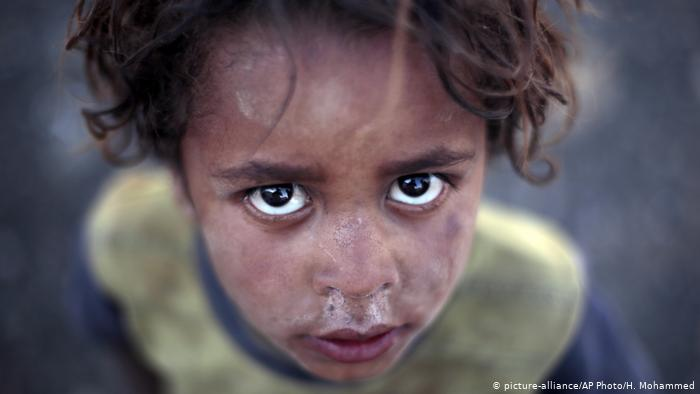 Photo of 7,500 kids 'killed or maimed' in Yemen since 2013, UN says