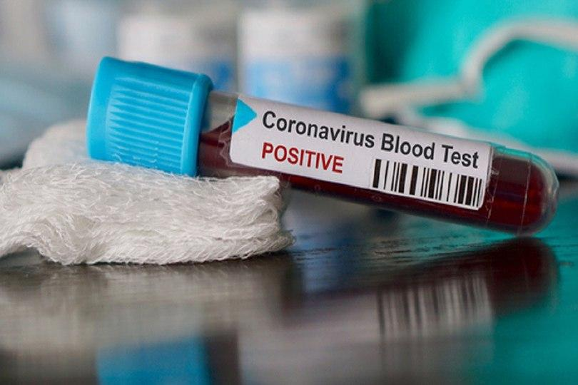 Photo of Coronavirus: 'Scientists in the UK to begin testing vaccine on humans this week'