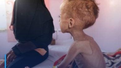 Photo of Acute malnutrition threatens half of children under five in Yemen in 2021: UN