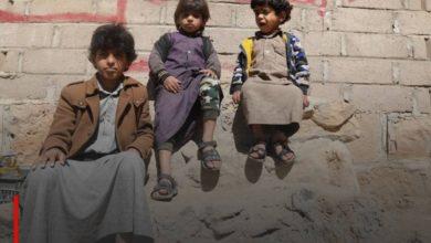 Photo of UNICEF: Hunger and disease kill a Yemeni child every 10 minutes