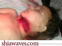 تصویر شهادت دختربچه شیعی در سوریه بدست مزدوران وهابی