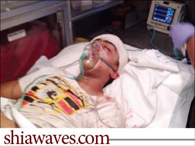 تصویر مجروحیت شدید دوشهروند ، بدست نیروهای امنیتی رژیم آلخلیفه
