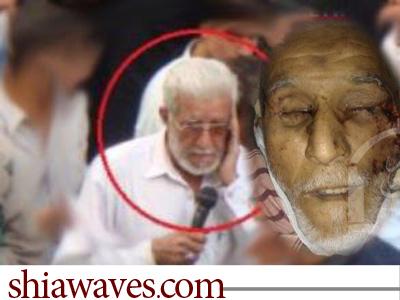 تصویر شهادت دو تن ازشیعیان پاکستان