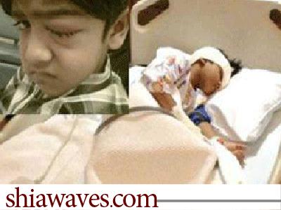 تصویر بینایی کودک بحرینی بر اثر تیراندازی نظامیان آل خلیفه