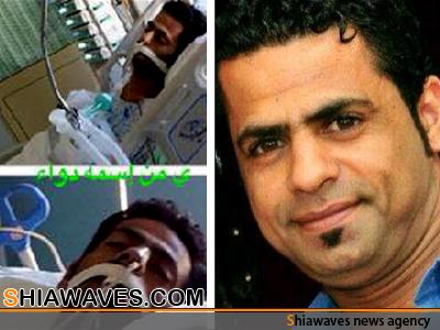 تصویر شهادت جوان بحرینی بر اثر شکنجه و عدم درمان