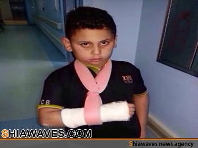 تصویر شکستن دست یک دانش آموز شیعه توسط معلم وهابی