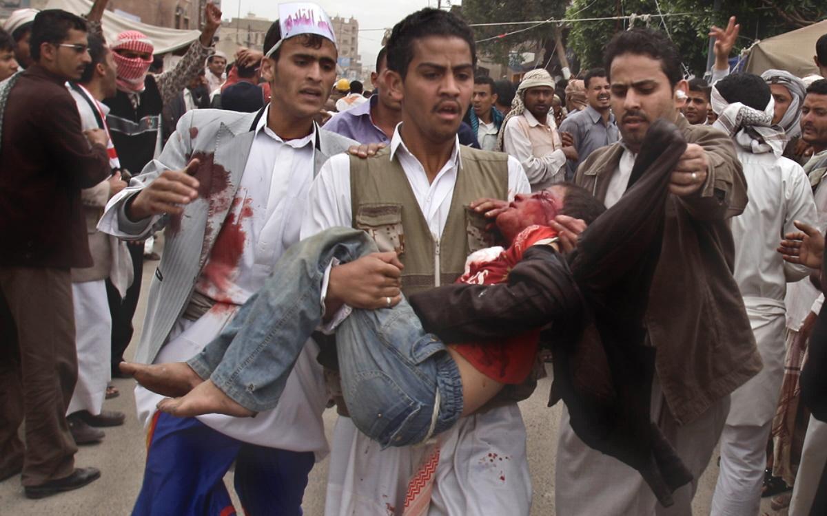 تصویر بان کی مون : از تعداد بالای کشتهها در یمن آگاهیم