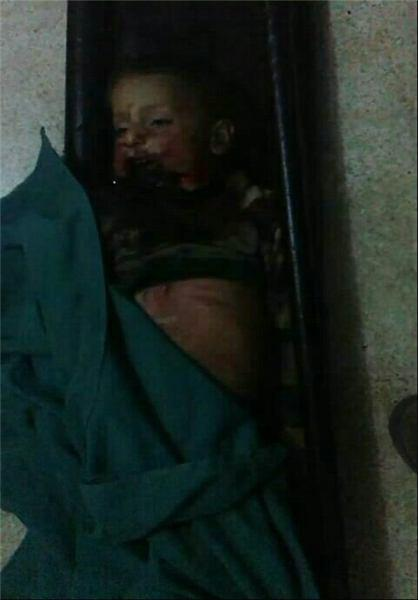 تصویر شهادت یک کودک شیعه سوری در حمله گروه های تکفیری