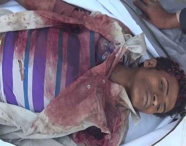 تصویر حمله جنگندههای عربستان با بمبهای خوشهای به يمن