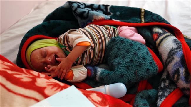 تصویر یونیسف: ۲.۲ میلیون کودک یمنی دچار سوءتغذیه ی حاد هستند
