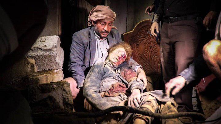 تصویر کشتار زنان و کودکان در یمن