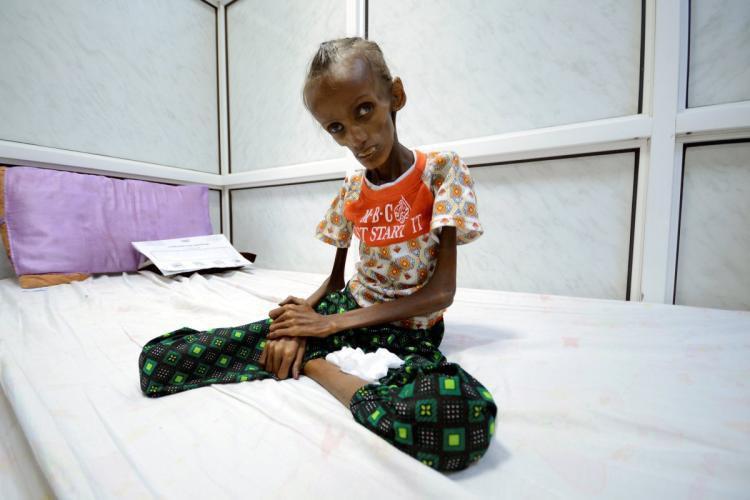 تصویر نماينده مجلس عوام انگليس: مردم یمن گرسنه اند