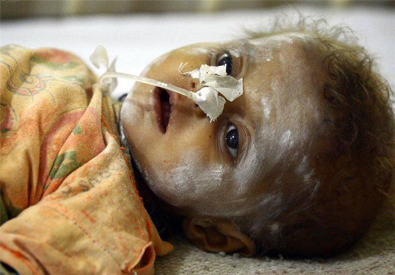 تصویر جان باختن 72 کودک پاکستانی از خشکسالی