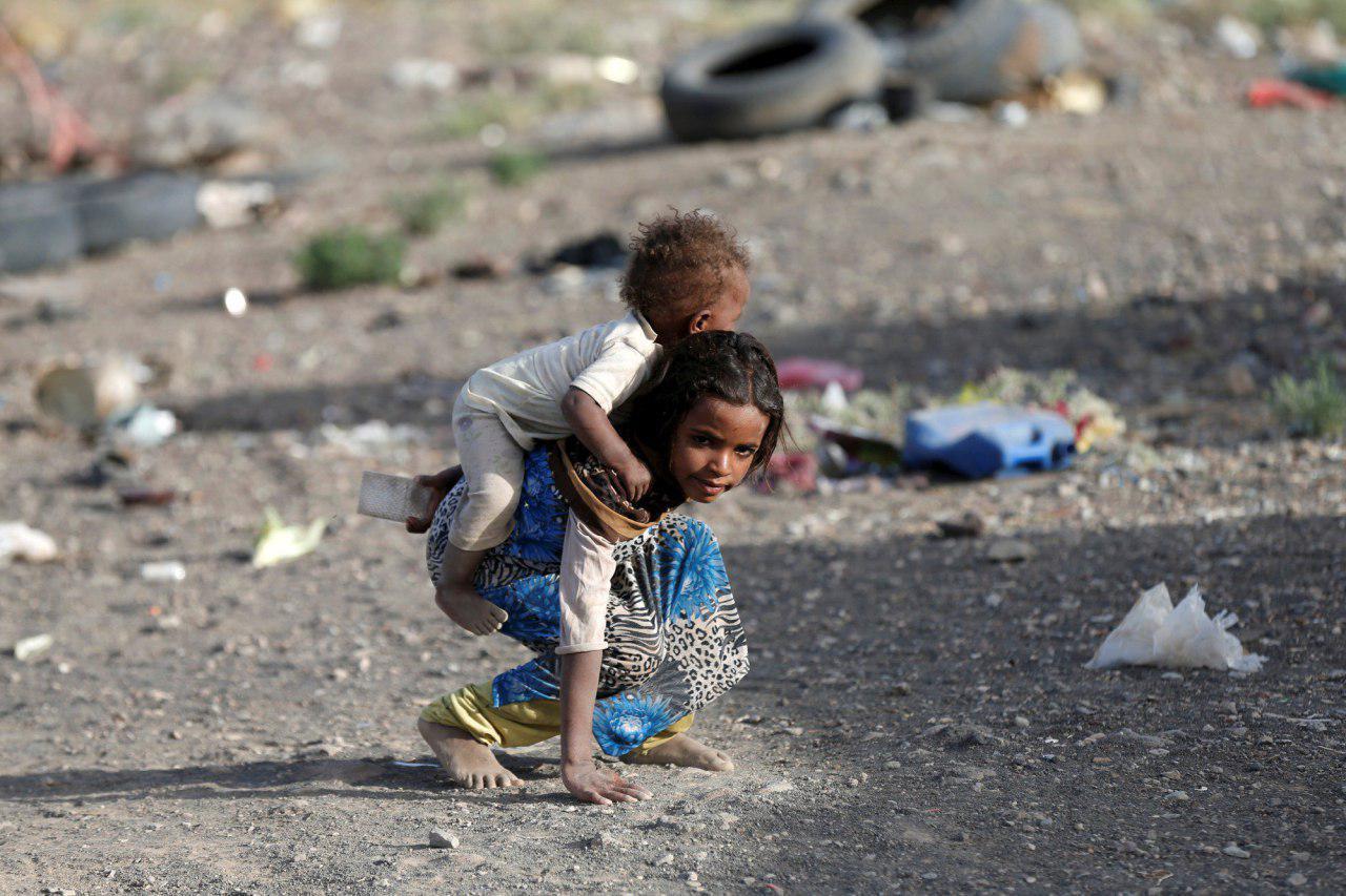 تصویر هشدار یونیسف نسبت به سوء تغذیه میلیون ها کودک یمنی و وقوع قحطی در این کشور