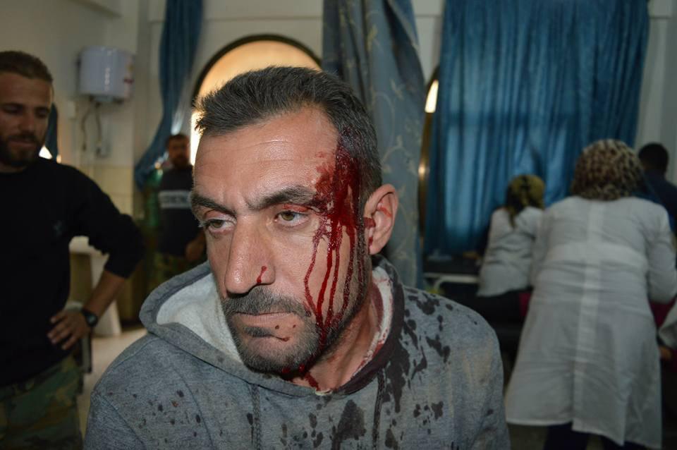تصویر حمله موشکی سنی های تندرو به شهر شیعه نشین نبل