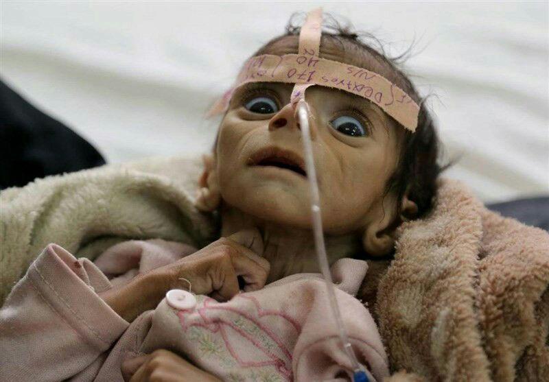 تصویر سازمان پزشکان بدون مرز در یمن: بحران یمن همواره بدتر و بدتر میشود