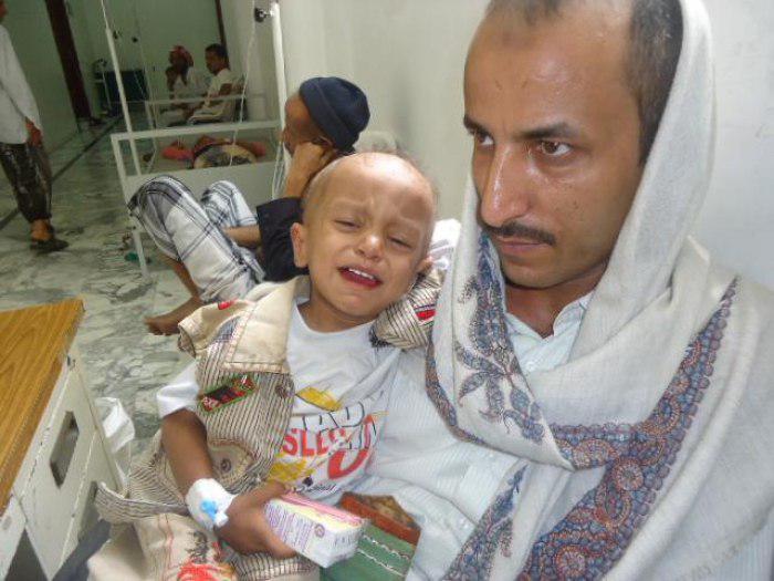 تصویر ابتلای 1300 شهروند یمنی به بیماری دیفتری
