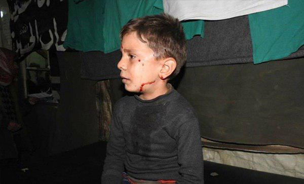 تصویر محاصره شیعیان فوعه و کفریا چهار ساله شد