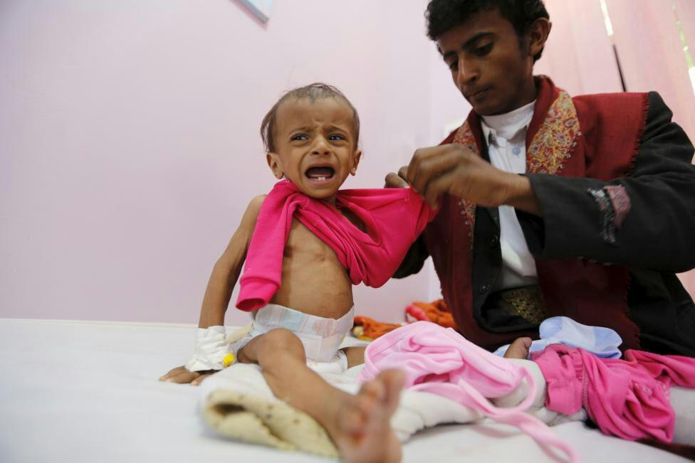 تصویر هشدار رئیس صلیب سرخ جهانی درباره فاجعه انسانی در یمن