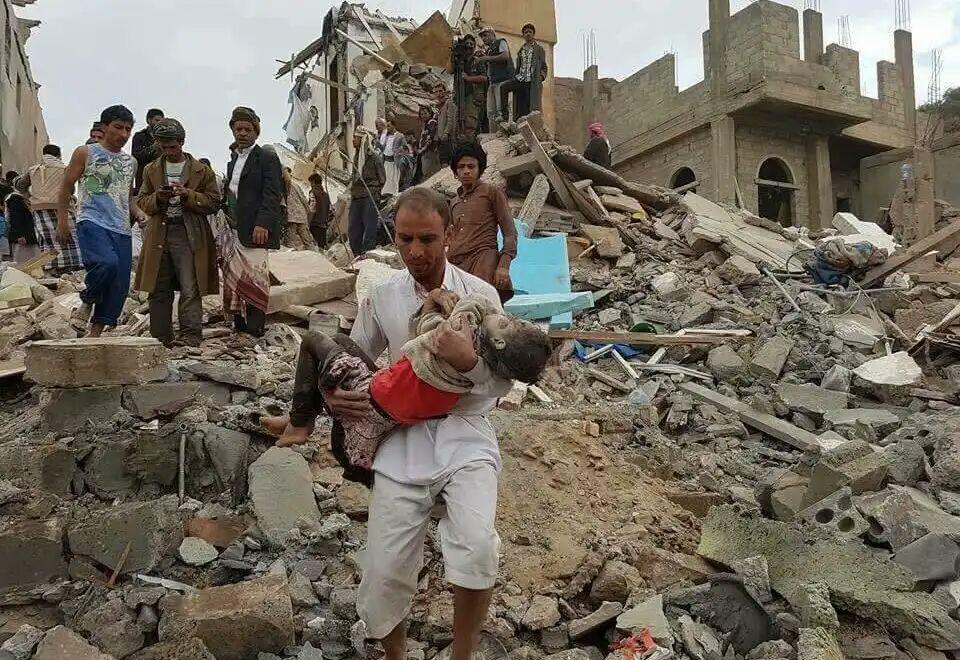 تصویر شهادت یک کودک یمنی در حمله ائتلاف سعودی