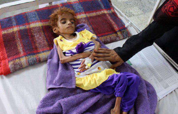 تصویر یمن در آستانه بدترین قحطی 100 سال اخیر
