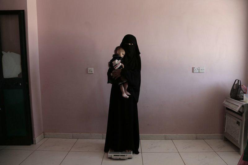 تصویر یونیسف هشدار داد؛ کمکها به مردم یمن نمیرسد