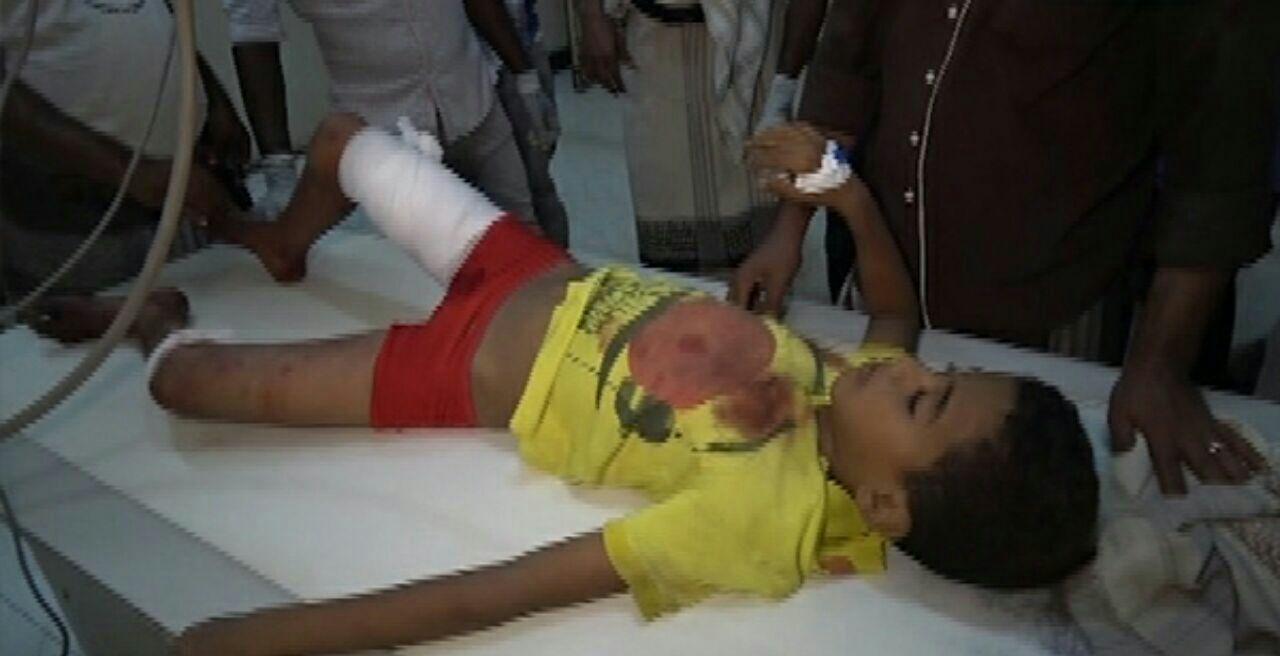 تصویر حمله جنگندههای ائتلاف سعودی به منازل مسکونی در بخش الحوک یمن