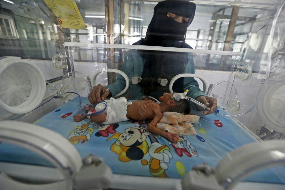 تصویر آمار تکاندهنده شمار شهدا و مجروحین یمنی از آغاز تجاوز ائتلاف سعودی