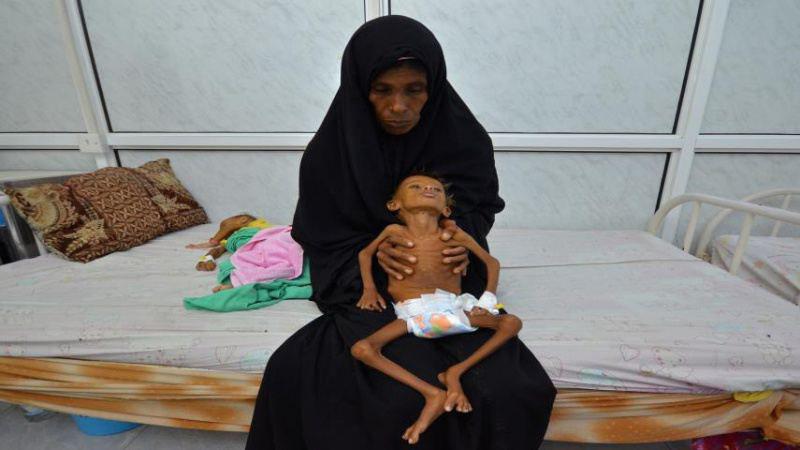 تصویر هشدار سازمان ملل درباره گرسنگی و مرگ و میر کودکان در یمن