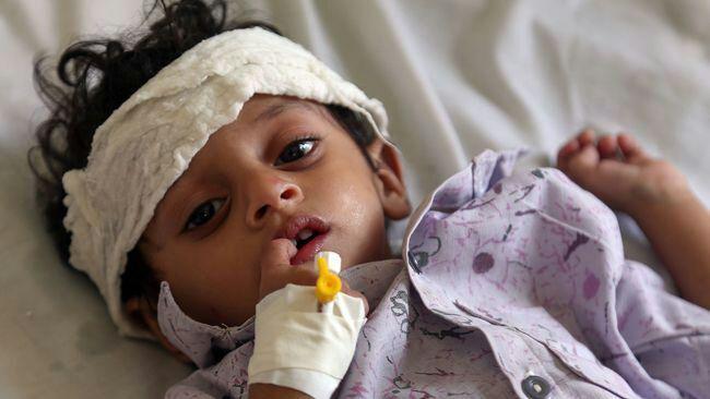 تصویر افزایش چشمگیر شمار کودکان مبتلا به سوء تغذیه در یمن