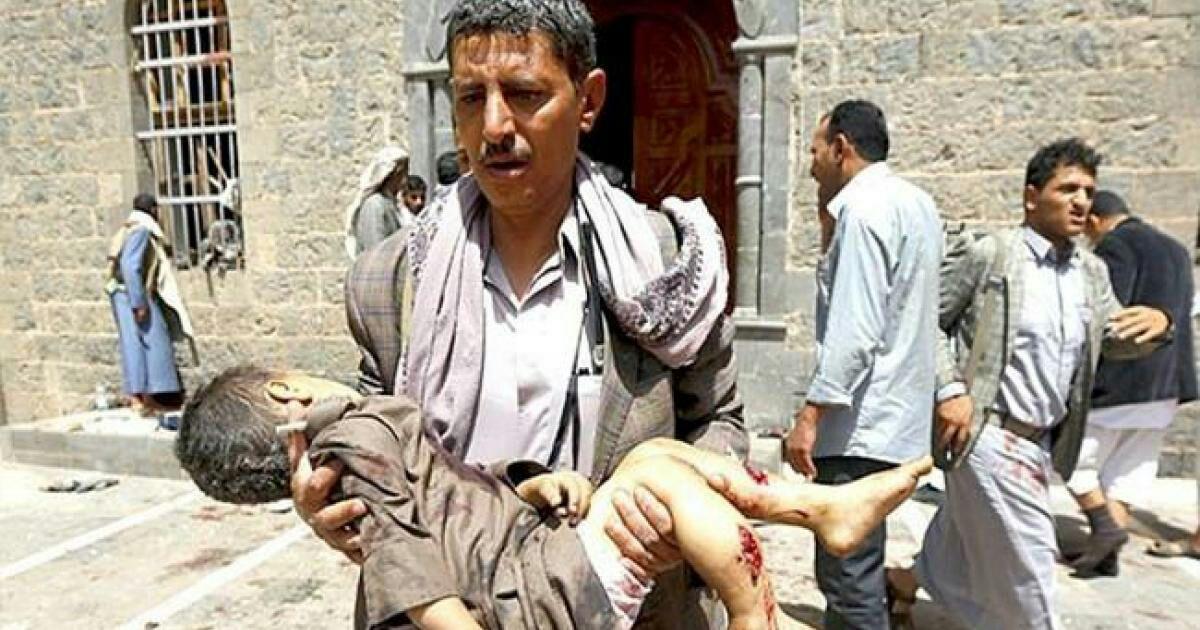 تصویر سازمان ملل اعلام کرد: جان باختن و یا نقص عضو ۷۵۰۰ کودک در یمن