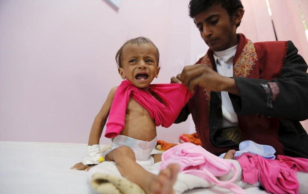 تصویر سازمان جهانی بهداشت: جان میلیونها کودک یمنی در خطر است