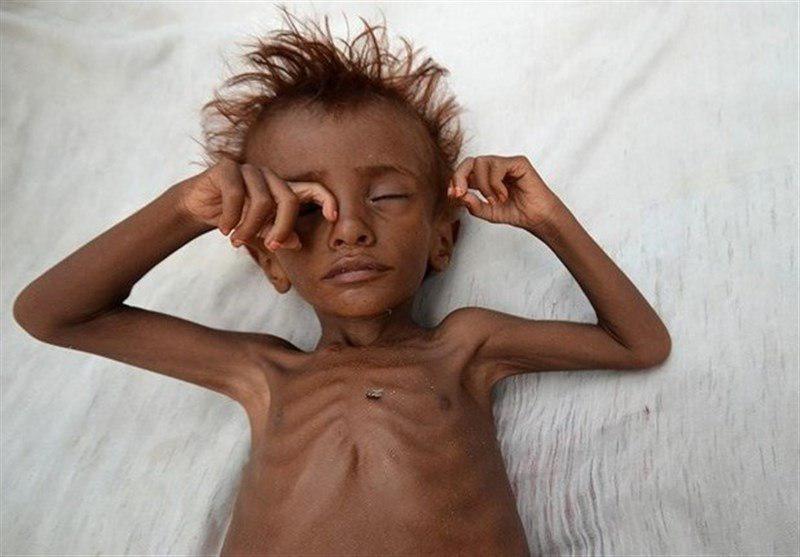 تصویر صندوق نجات کودکان خواستار توقف جنگ فاجعه بار در یمن شد